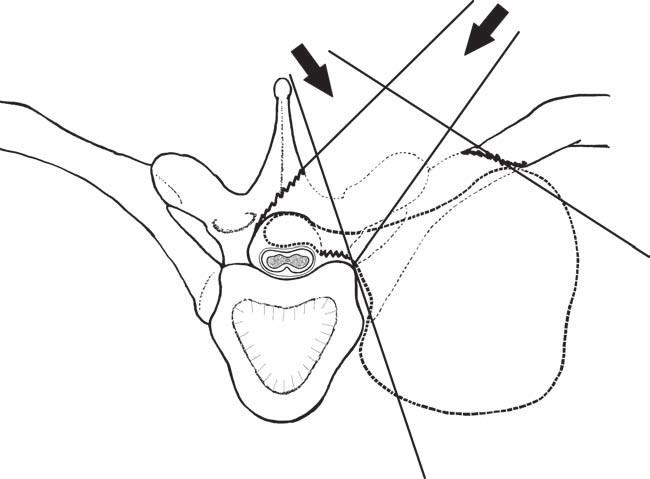 """Nákres zadního operačního přístupu: hemilaminektomie s """"undercuttingem"""" kontralaterálně, kostotransversektomie, které umožňují pohled a bezpečný přístup k intraspinální i extraspinální části sutkovitého nádoru (axiální pohled). Fig. 4. Posterior surgical approach: hemilaminectomia with contralateral """"undercutting"""", costotransversectomy that allow view and safe access to the intraspinal and extraspinal part of the dumbbell-shaped tumor (axial view)."""