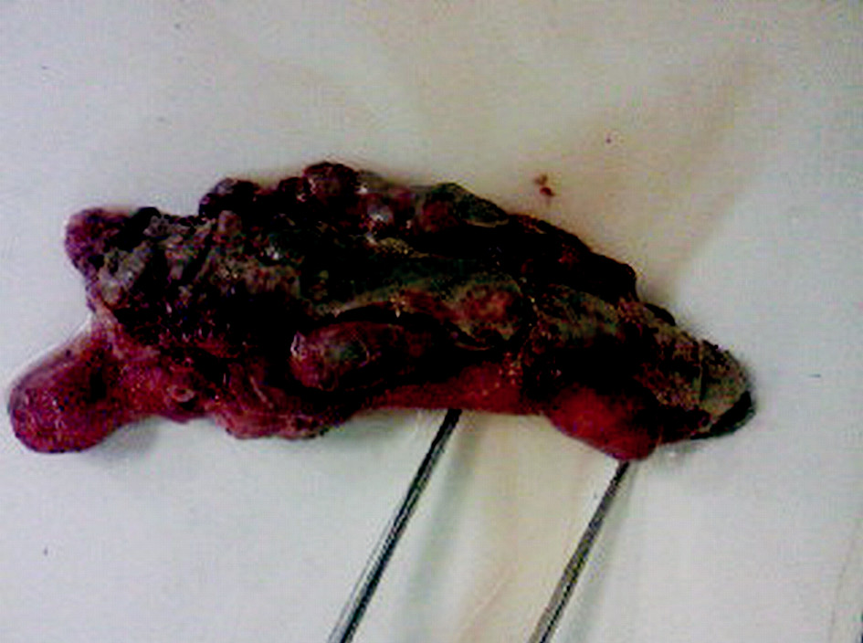 Gangrenózny apendix s divertikulózou, divertikulitídou a perforáciou na apexe apendixu vermiformis Pic. 2. Gangrenous appendix with diverticulosis, diverticulitis and perforation of the appendix vermiformis apex