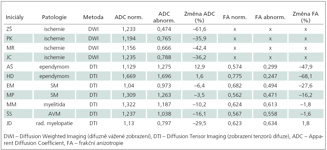 Měření hodnot ADC a FA (v případě DTI vyšetření) u všech pacientů s různým typem míšní léze.