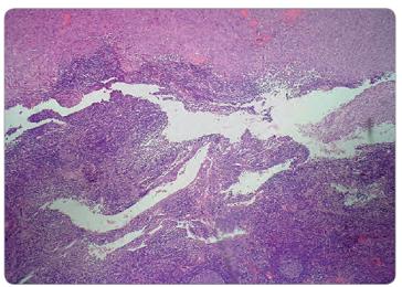 Infi ltrácia inguinálnej lymfatickej uzliny spinocelulárnym karcinómom. Histologický nález, farbenie HE.