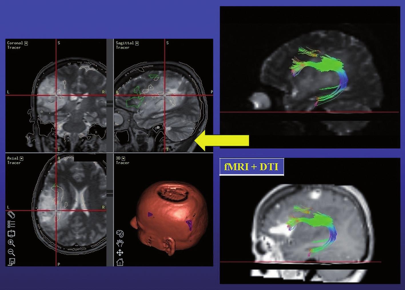 Vpravo: fúze operkulární řečové oblasti (fMR T1) a fasciculus arcuatus (DTI T2); vlevo: záznam neuronavigace (fúze DTI, fMR, T2) – červený crosshair: hloubka resekce respektující fasciculus arcuatus.