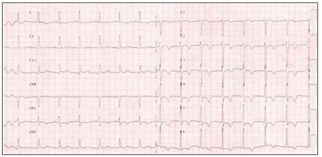 12svodové EKG po ukončení hyperventilačního testu.