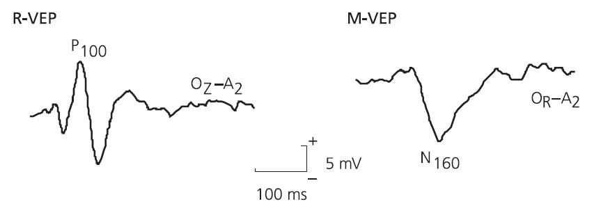 Typické příklady zrakových evokovaných odpovědí při stimulaci R-VEPs (P100 s maximem v Oz) a M-VEPs (N160 s maximem v Or nebo Ol).