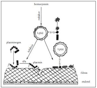 Schéma inhibice fibrinolýzy účinkem zvýšeného homocysteinu na Lp(a), který pak kompetitivně inhibuje syntézu plazminu [2].