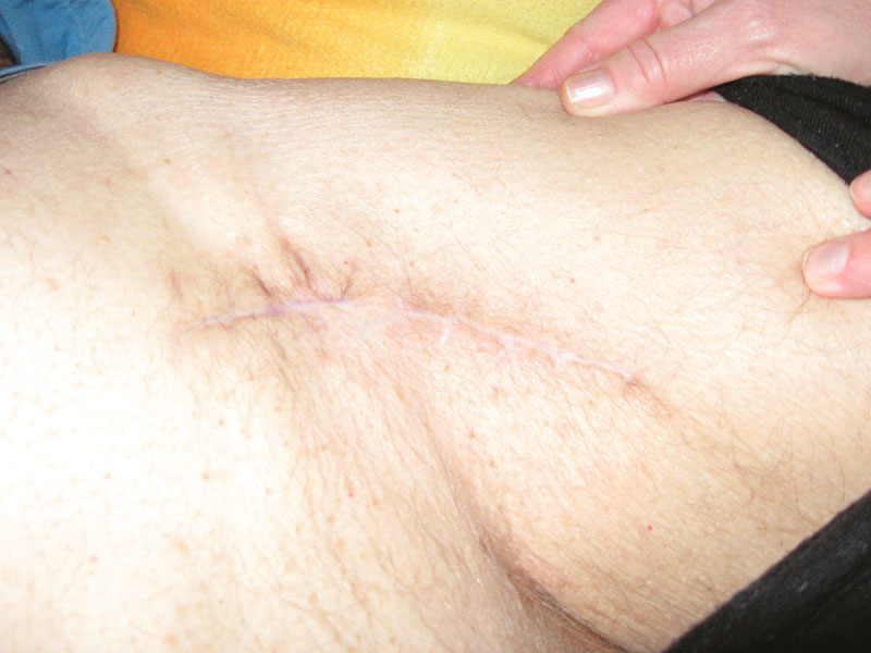 Stav po zhojení Fig. 11. Result after the wound healing