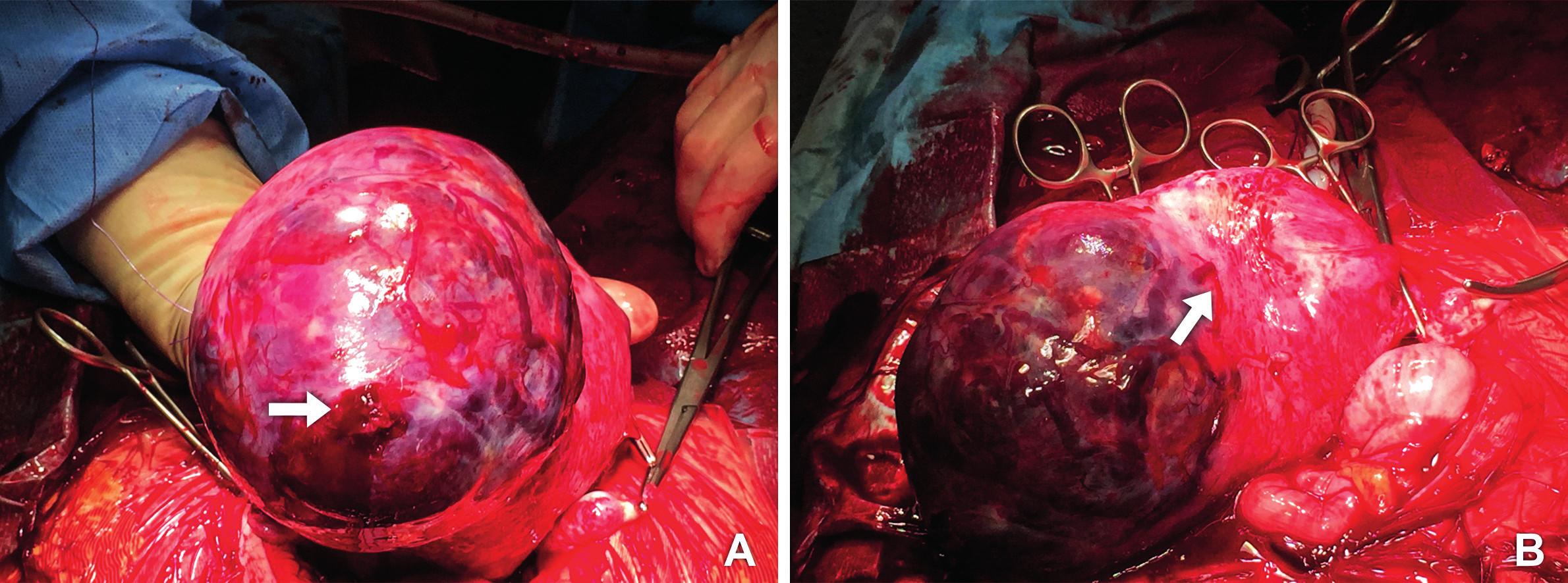 Operační nález A. Placenta percreta prorůstající z levého děložního rohu (šipka ukazuje zdroj krvácení) B. Plošně adherující placenta, která na několika místech prorůstá děložní stěnou
