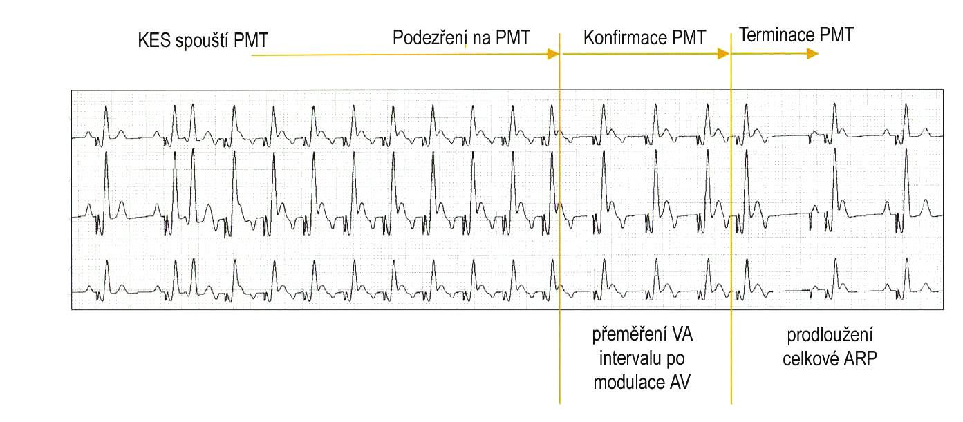 Pacemakerová tachykardie spuštěná komorovou extrasystolou je detekována po 8 konsekutivních stazích se stabilním VA-intervalem stimulace komor spouštěné síněmi (podezření na PMT). Potvrzení (konfirmace) je provedeno přeměřením VA-intervalu po modulaci (zkrácení či prodloužení) AV delay. Pokud je PMT potvrzena, je jednorázovým prodloužením atriální refrakterní periody (ARP) docíleno časování retrográdního P do refrakterity, a tím terminace PMT. (zdroj: Biotronik Philos II. Výukový materiál)
