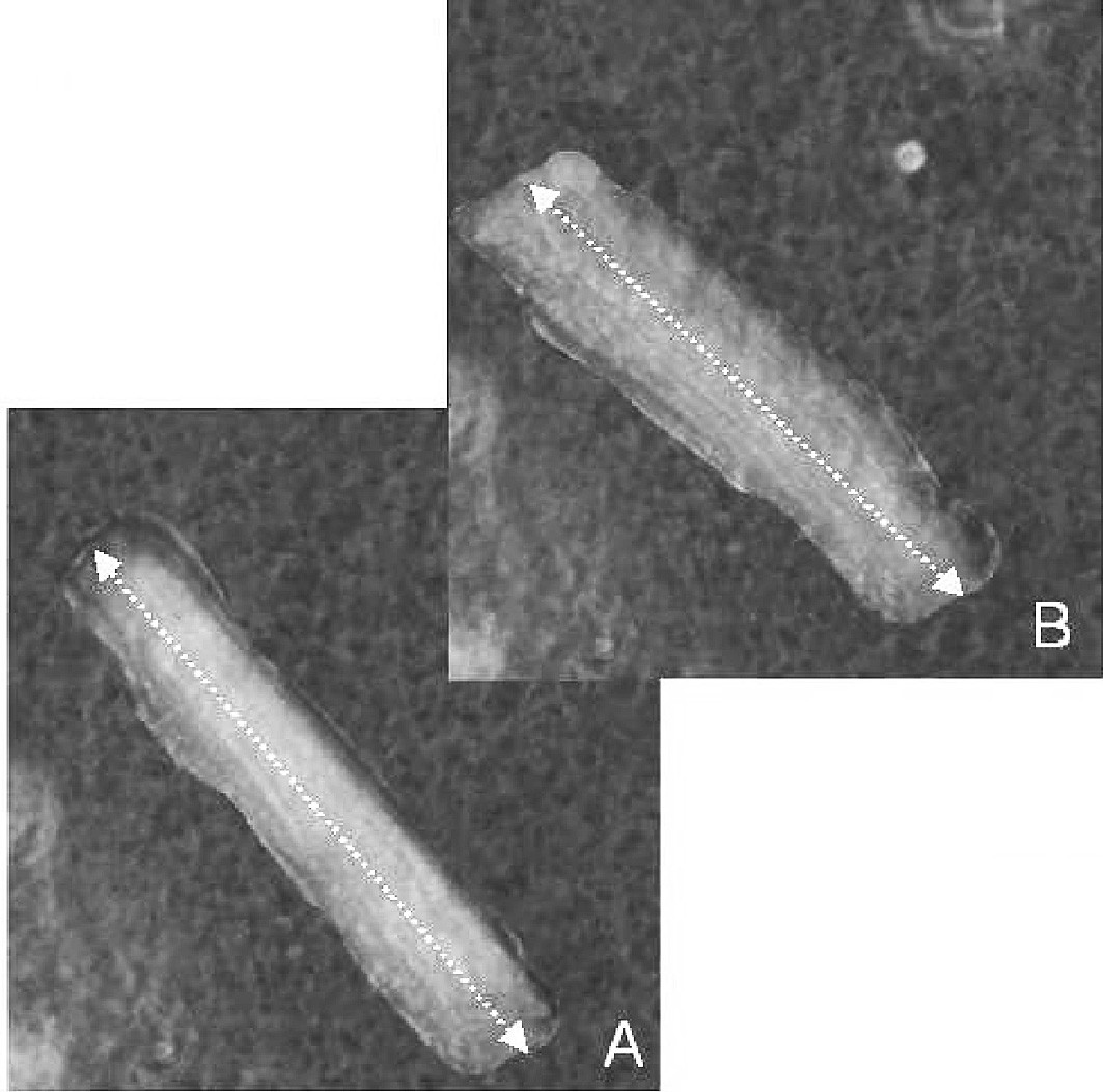 Fig. 1. Calcein-loaded viable cardiomyocyte. Measurement of systolic shortening (A – diastolic length, B – systolic length)