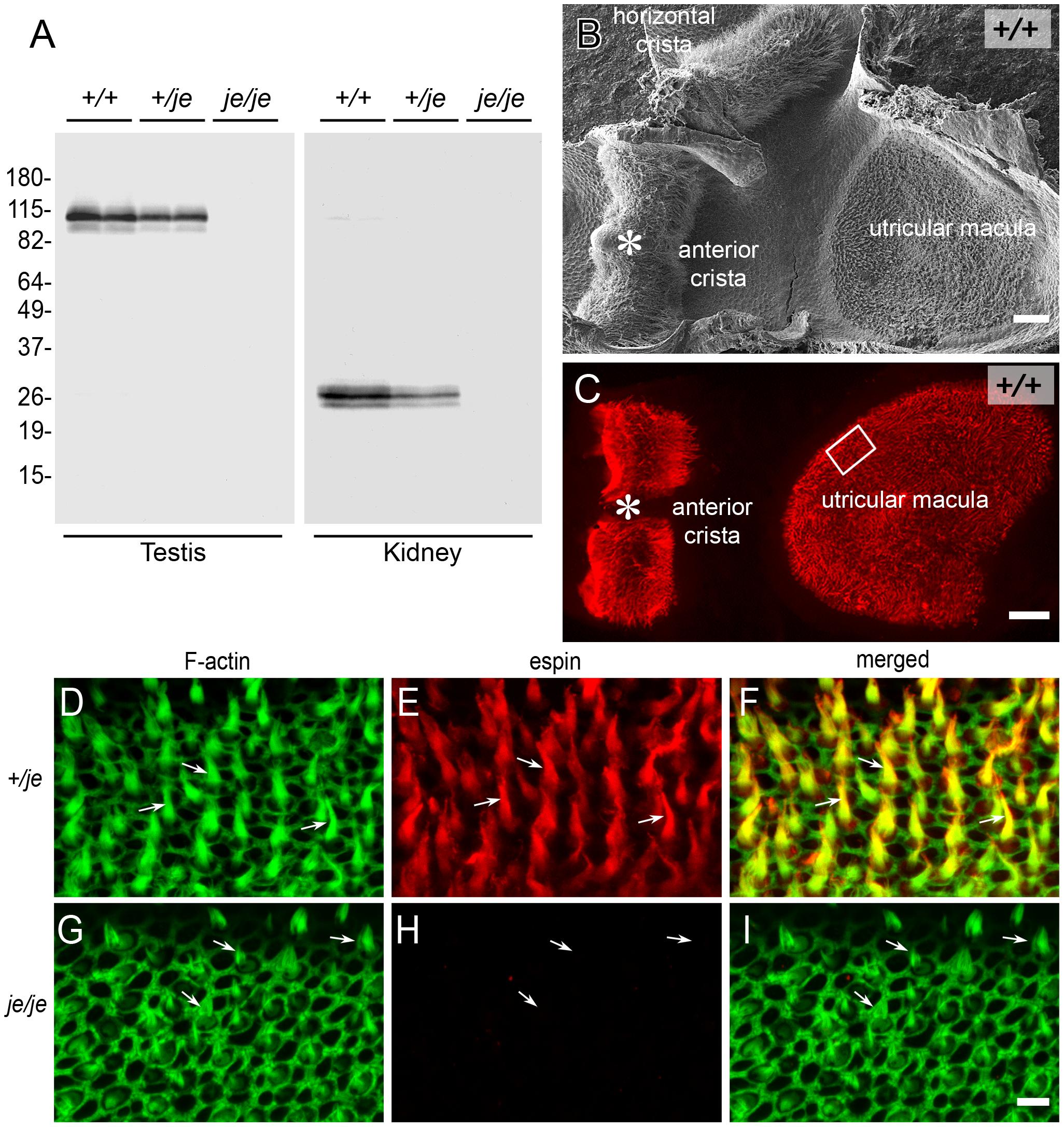 <i>je/je</i> mice lack espin proteins.