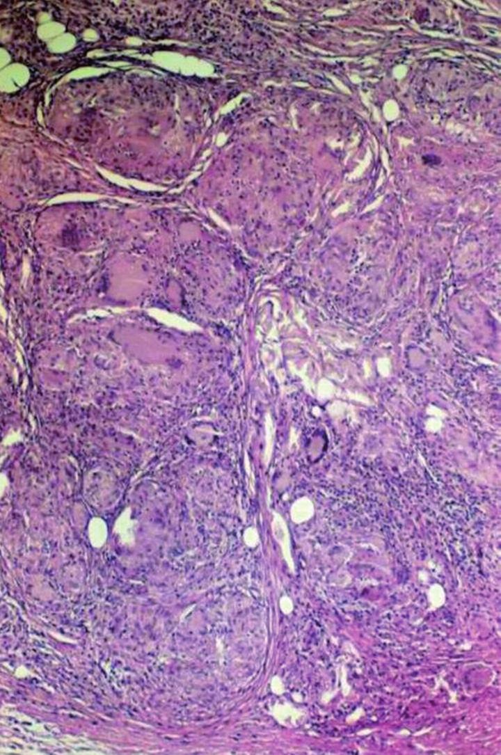 Podkožní sarkoidóza – granulomy nahrazující lalůček podkožní tukové tkánů s četnými obrovskými mnohojadernými Langhansovými buňkami a membranocystickou degenerací podkožní tukové tkánů.