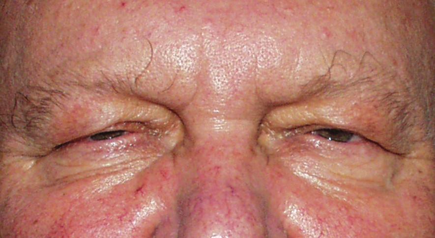 Stav postavení víček v době uvolnění – pootevření oční štěrbiny