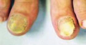 Distálně-laterální forma onychomykózy