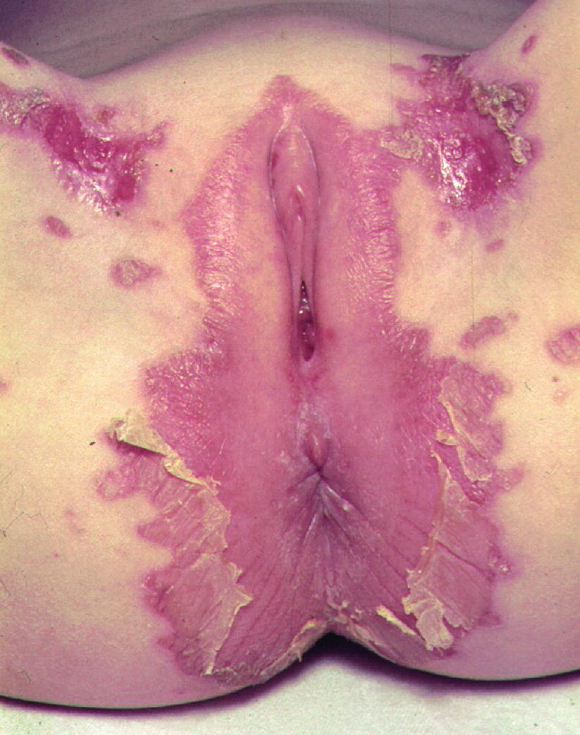 Kožní změny při acrodermatitis enteropathica.
