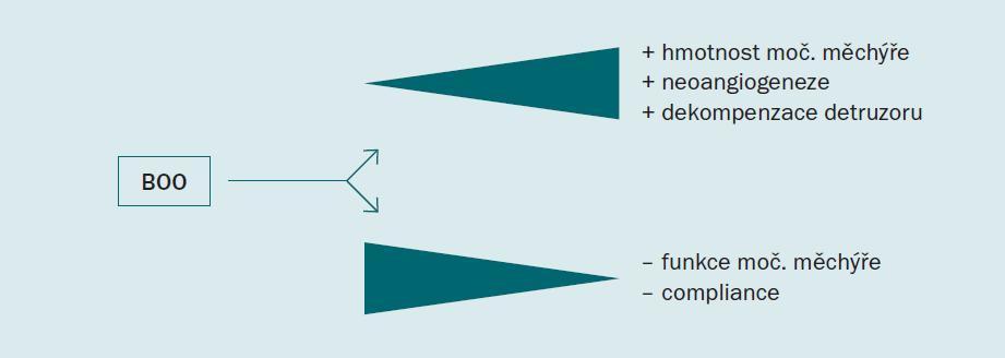 Následky subvezikální obstrukce (BOO) na morfologii a funkci močového měchýře [30].