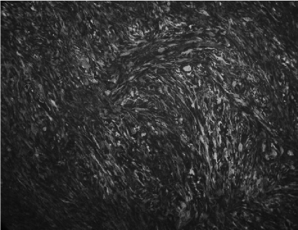 Fig. 1. Fluorescence imaging of intraperitoneal BP6 GFP fibrosarcoma