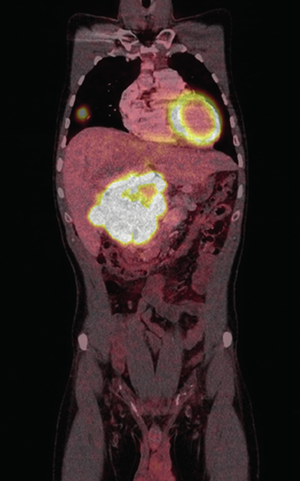 Objemný paragangliom retroperitonea s patrnou metastázou v pravé plíci (PET CT)