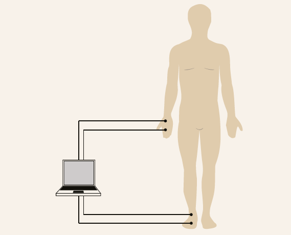 Two electrodes are placed on the right hand