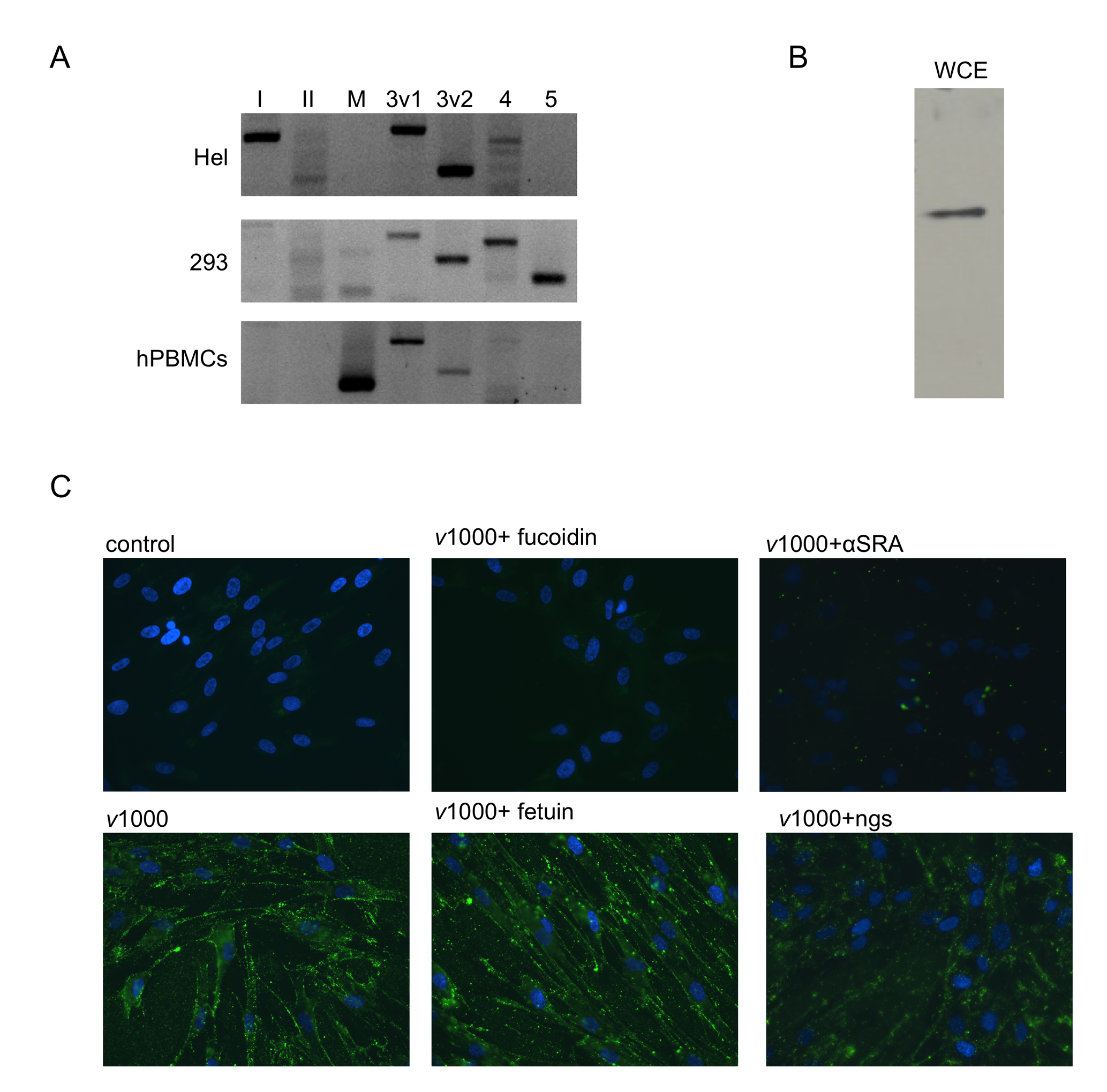 Human fibroblasts express SR-As that mediate dsRNA binding via the collagenous domain.