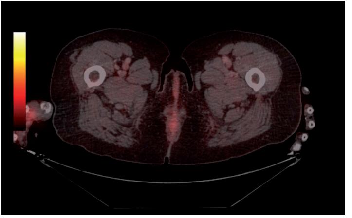 PET/CT vyšetření s FDG avidním ložiskem pravého předloktí 01/2017