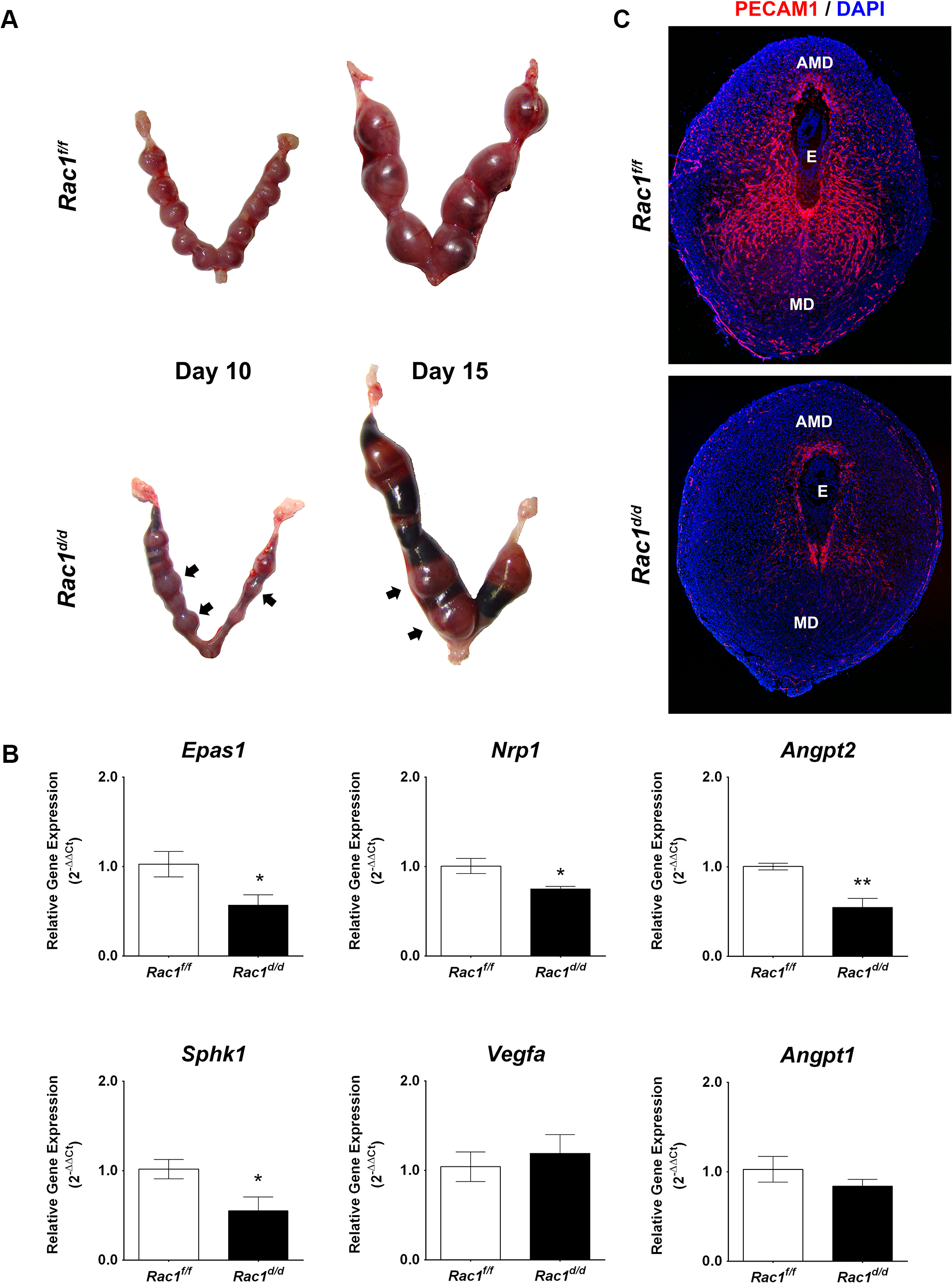 Pregnancy failure in <i>Rac</i>1<sup><i>d/d</i></sup> mice in mid gestation is associated with lack of angiogenesis.