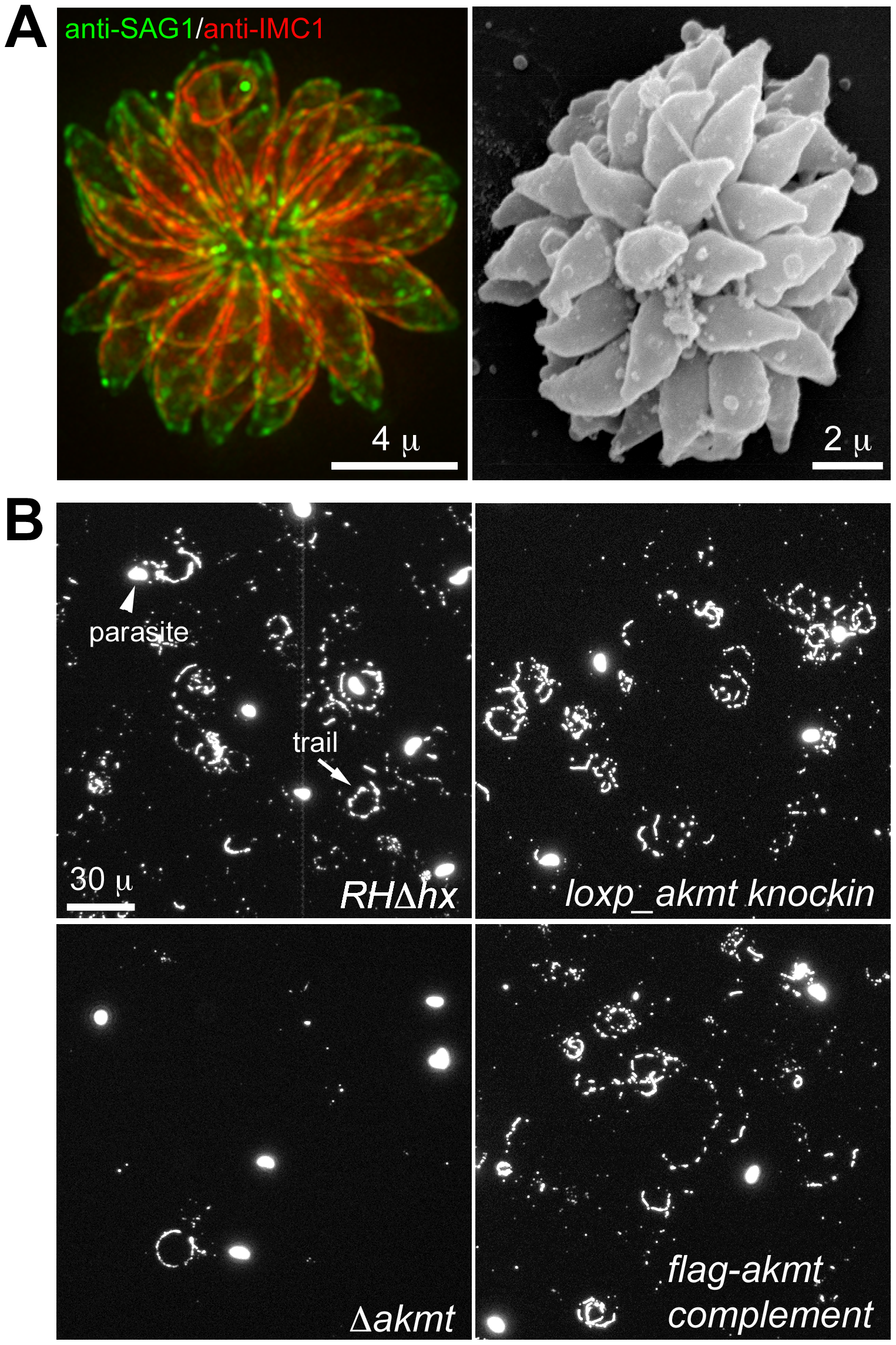 The motility of <i>Δakmt</i> parasites is impaired.