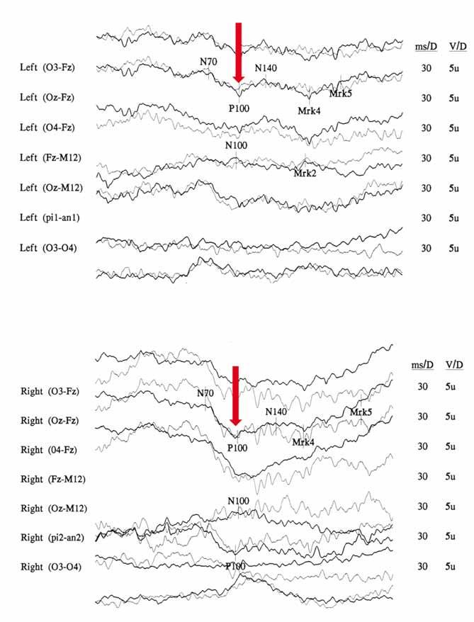 Snížení amplitudy a prodloužení latence kortikálního komplexu zrakových evokovaných potenciálů (VEP) u 29letého muže s m.3460G>A mutací v chronické fázi onemocnění. Amplituda N75/P100 levého oka (OL) 3,45 μV (A) a pravého oka (OP) je 6,4 μV (B) (norma na pracovišti > 5 μV). Latence vlny P100 (červené šipky) OP je 143,3 ms a OL 139,8 ms (norma na pracovišti < 112 ms). Fig. 4. Decreased amplitudes and prolonged peak latencies on Visual evoked potentials (VEP) analysis in 29-year-old man with m.3460G>A mutation. Amplitude of wave N75/P100 from the left eye (LE) 3,45 μV (A) and from the right eye (RE) is 6,4 μV (B) (controls > 5 μV). P100 wave latencies (marked by red arrows) from the RE is 143,3 ms and from the LE 139,8 ms (controls < 112 ms).