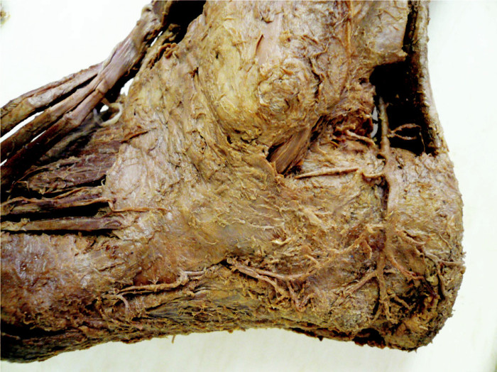 Preparát II – rozeznatelný anastomozující oblouk Fig. 3. Preparation II – a detectable anastomotic arch AŠ – Achillova šlacha, LCA – laterální kalkaneární arterie, LTA – laterální tarsální arterie, LMA – laterální malleolární arterie AŠ – Achilles tendon, LCA – lateral calcaneal artery, LTA – lateral tarsal artery, LMA – lateral malleolar artery