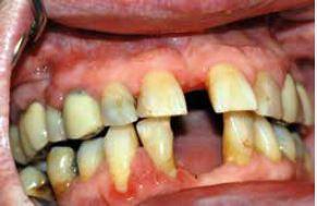 Obr. 4b Tentýž pacient, stav po konzervativní parodontologické léčbě a následné gingivektomii, přetrvává pouze mírná hyperplazie a zánětlivé změny u špičáku a řezáku vpravo dole. Z archivu autorky