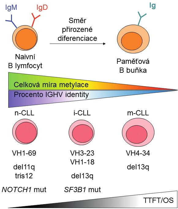 Schematické znázornění prognostických kategorií CLL definovaných na základě metylačního profilu a jejich vztahu k přirozeným vývojovým stadiím B lymfocytu, úrovni celkové metylace a klinickým faktorům