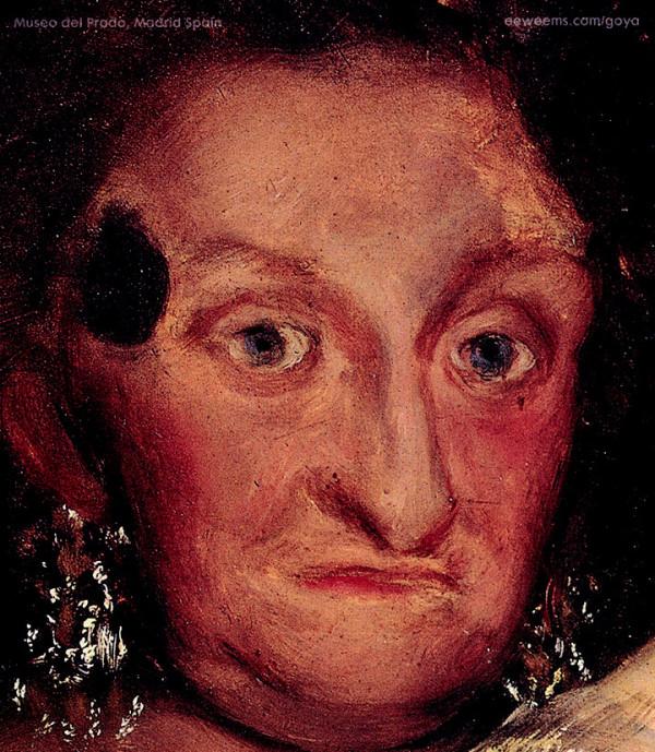 Infantka María Josepha s kožným a očnými prejavmi (detail obr. 1 a 2).