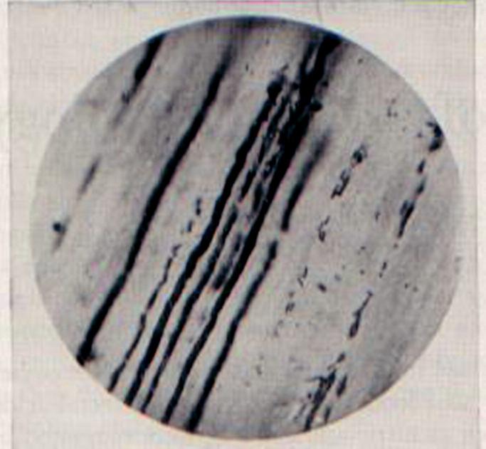 Podélný řez kazivým dentinem v jehož tubulech vidíme mikroorganismy. (Původní mikrofotografie z Millerovy knihy).