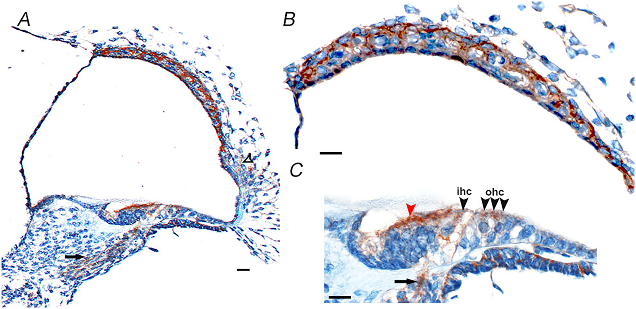 Cd164 expression in the mouse cochlea at postnatal day five.