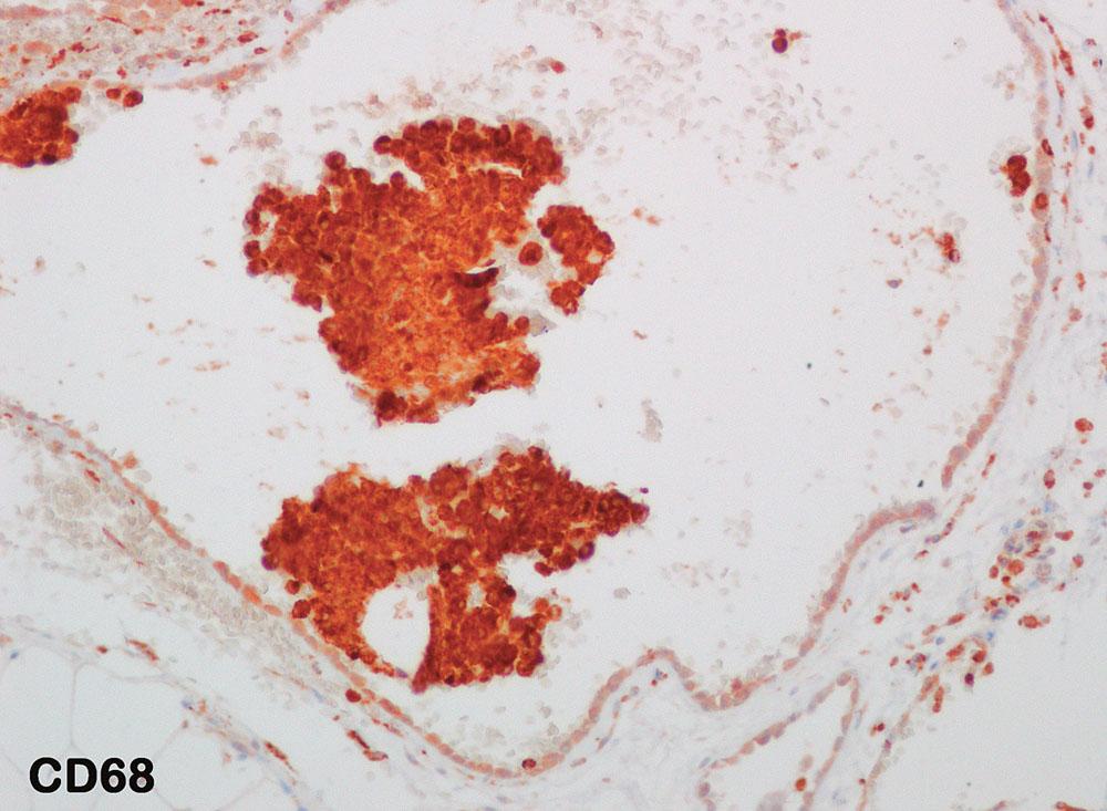 Imunohistochemické vyšetření s protilátkou proti CD 68 antigenu: negativita ve výstelce cyst, pozitivní průkaz v solidních buněčných fragmentech