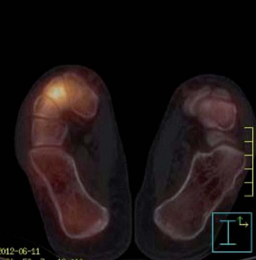 Dynamická scintigrafie (SPECT) nohou (červen roku 2012). Vyšší perfuze i metabolický obrat v oblasti Lisfrankova skloubení vpravo.