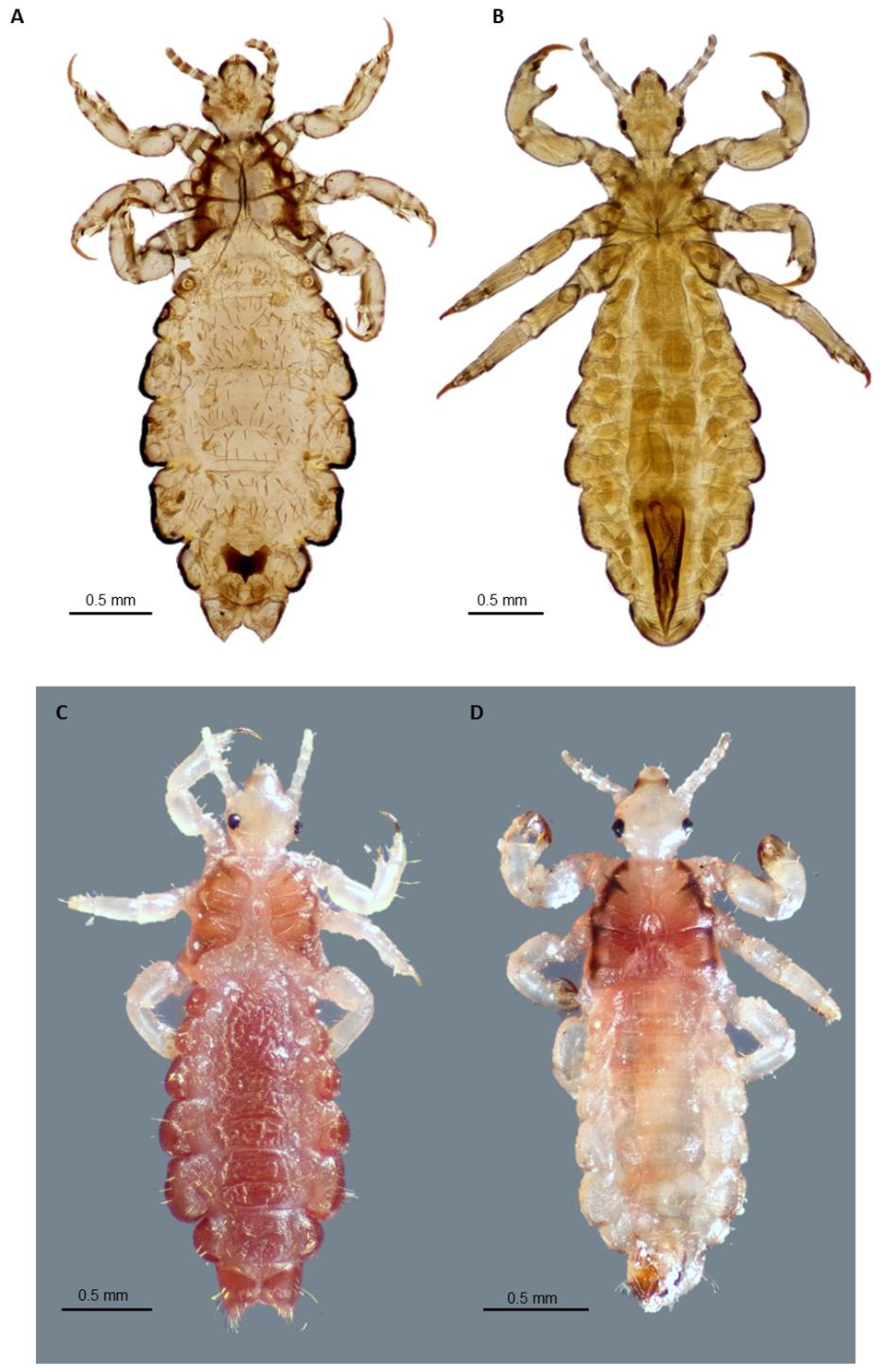 Adult body louse and head lice.
