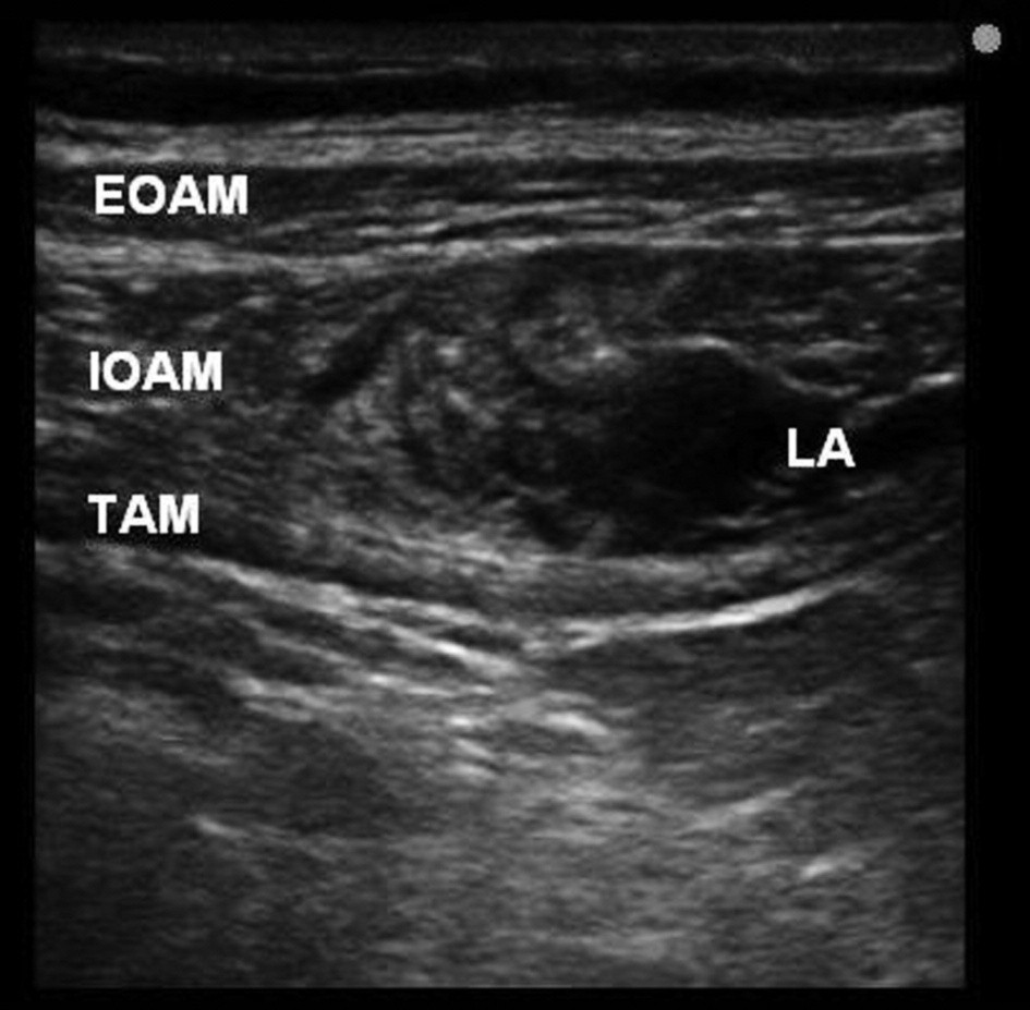 Distribution of local anaesthetic solution in transversus abdominis plane between the internal oblique abdominis and transversus abdominis muscles