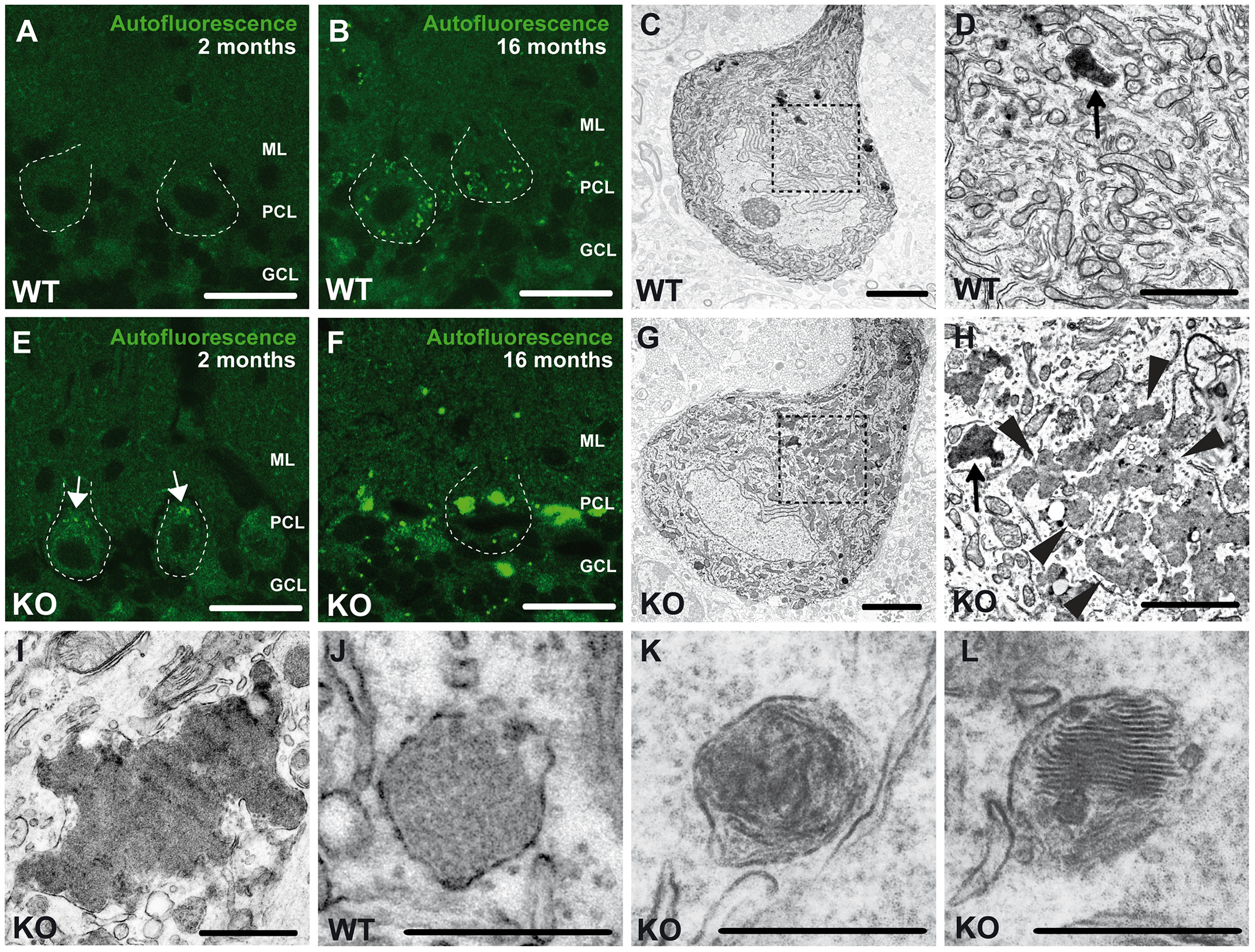 Accumulation of autofluorescent, electron-dense, membrane-enclosed material in knockout mice.