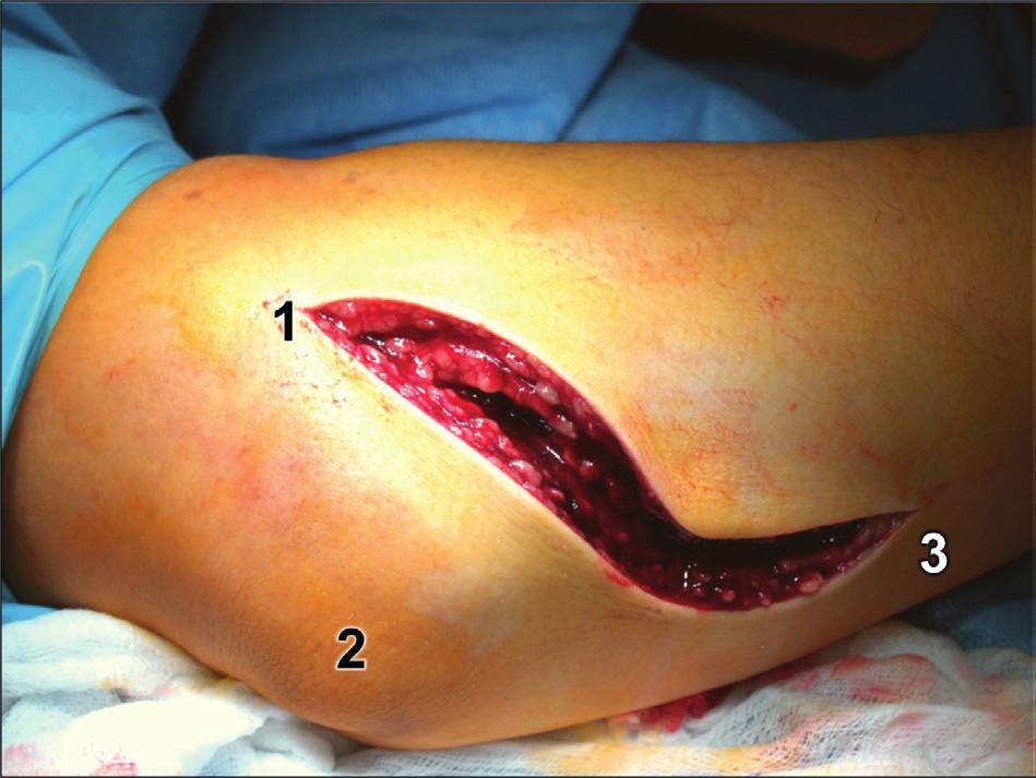 Rozšířený modifikovaný Kocherův přístup – kožní řez: 1 – epicondylus lateralis humeri,  2 – olekranon, 3 – ulna. Fig. 13: Extended modified Kocher approach – skin incision: 1 – lateral epicondyle of humerus,  2 – olecranon, 3 – ulna.