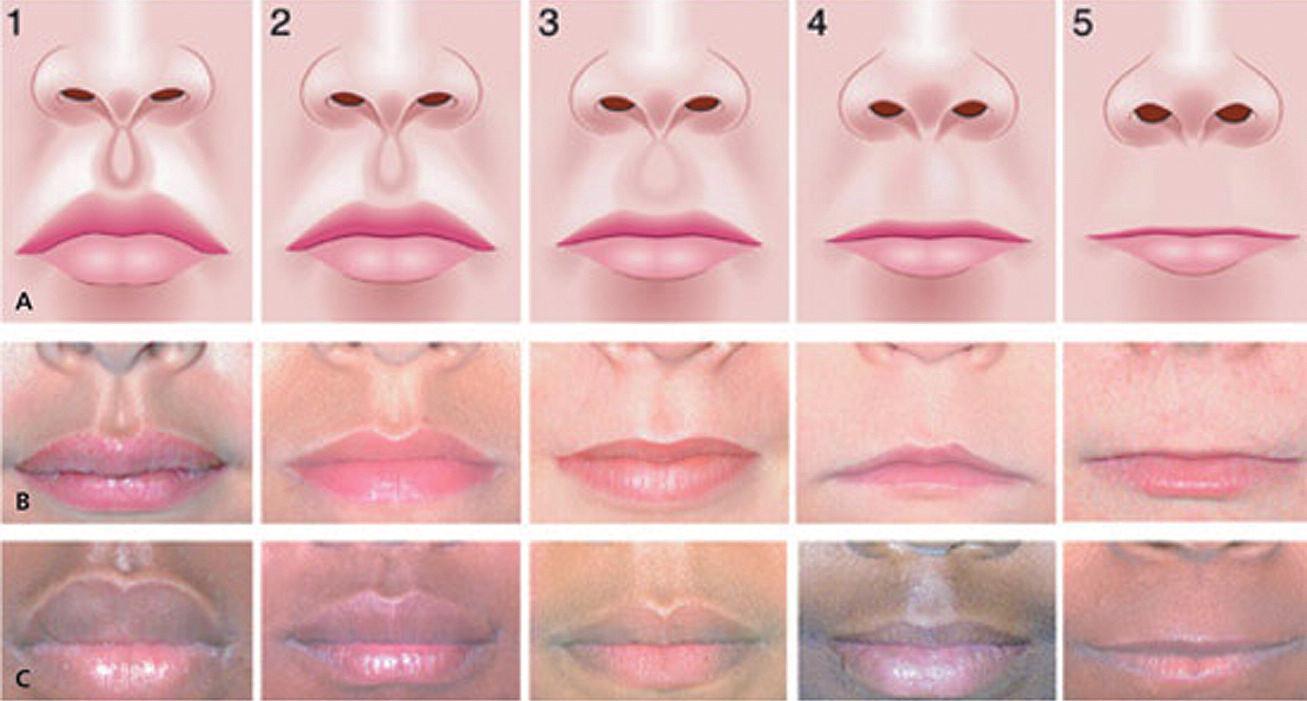 Charakteristické změny horního rtu, philtra a nosu u FAS. Stupnice : 1 = normální, 5 = nejtěžší postižení – při klidu obličeje (úsměv pacienta znaky změní) A = schéma, B = změny u bílého pacienta, C = změny u černého pacienta (Převzato zWattendorf DJ, Muenke M, 2005) Fig. 2. Characteristic changes of upper lip, philtrum and nose in FAS. Scale: 1 = normal, 5 = most serious defect – in the resting face (smile changes the signs) A = scheme, B = changes in a while patient, C = changes in a afro patient (Adopted fromWattendorf DJ, Muenke M, 2005)