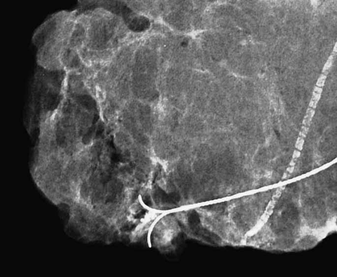 <em>Specimen radiography</em>, převážně tukový exstirpát, shluk mikrokalcifikací na rozloze 3,5 mm. Nápadná vazoskleróza. Histologicky prokázán kribriformní + komedo in situ karcinom, Grade 3, vysoce pozitivní hodnota obou steroidních receptorů.