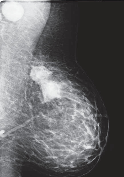 Mamogram – nádorové ložisko a zvětšené uzliny v axile