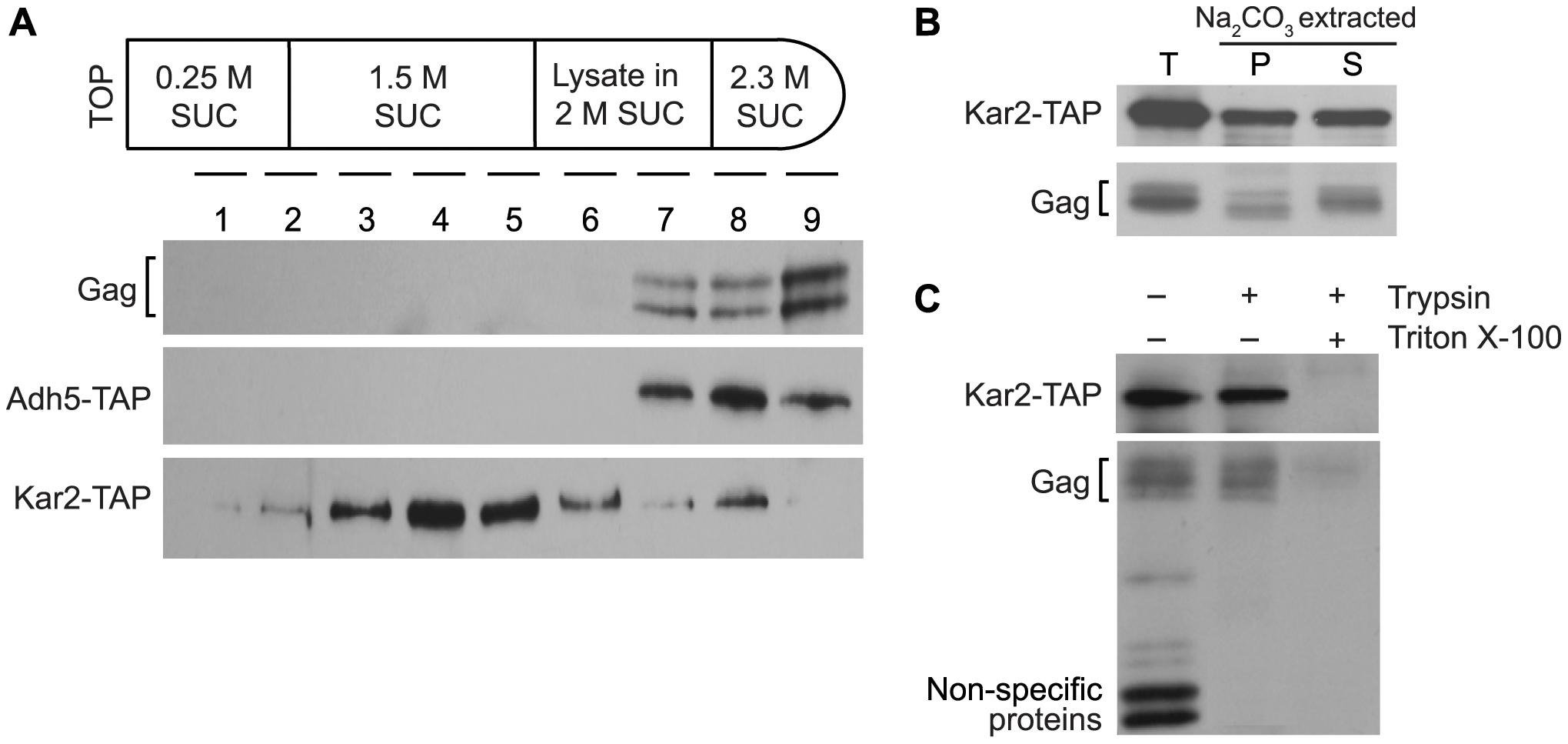 Ty1 Gag is present in the lumen fraction of ER microsomes.