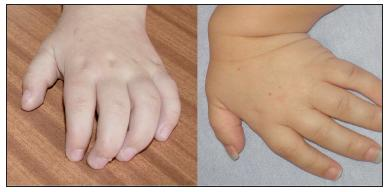 """Vlevo – typická """"drápovitá"""" ruka u pacienta s MPS I. Vpravo – hypermobilita a hypotonie ruky u pacienta s MPS IV. Fig. 3. On the left is the typical """"clawlike hand"""" in a patient with MPS I. On the right there is hypermobility and hypotonia of the hand in a patient with MPS IV."""