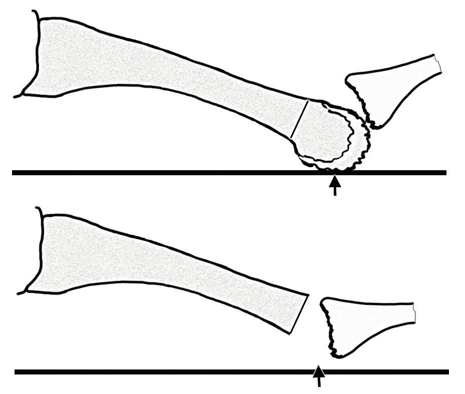 Boční pohled na druhý metatarz; schematické znázornění resekce hlavičky metatarzu; osteotomie se provádí z plantárního přístupu a odstraňuje se celá destruovaná hlavička; černá šipka – místo zátěže.