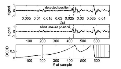 Fig. 3: Methodic of the V detection on the bottom part is shown the BSCD output.