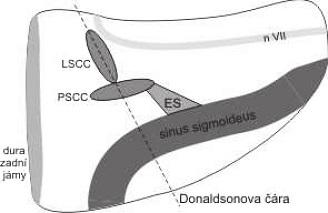 Endolymfatický vak.