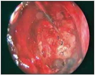 Otevření sfenoidální dutiny a zadních čichových sklípků pro transtuberkulární/transplanární přístup. 1 – spodina sedla, 2 – tuberculum sellae, 3 – planum sphenoidale, 4 – recesus clivalis