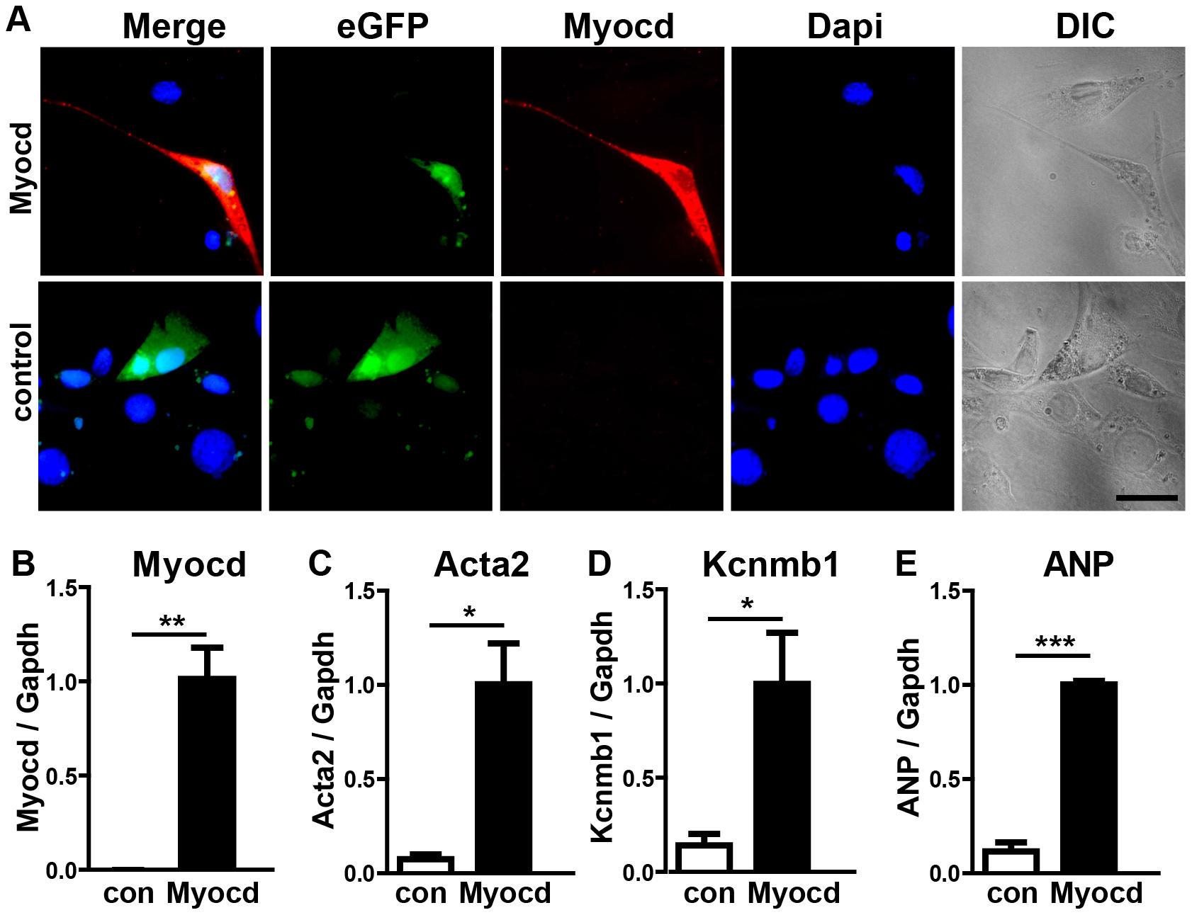 Expression of the miR-1 target myocardin induces smooth muscle cell-like morphology in NIH3T3 cells.