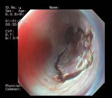 Obr. 6B. Endoskopická submukózní disekce – cirkulární řez kolem neoplazie. Fig. 6B. Endoscopic submucosal dissection – circular cut around neoplasia.