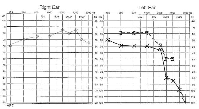 Audiogram nemocné po dokončení léčby. Kostní vedení zůstalo beze změny. Kostně vzdušný rozdíl byl snížen provedením myringoplastiky na 20 dB.